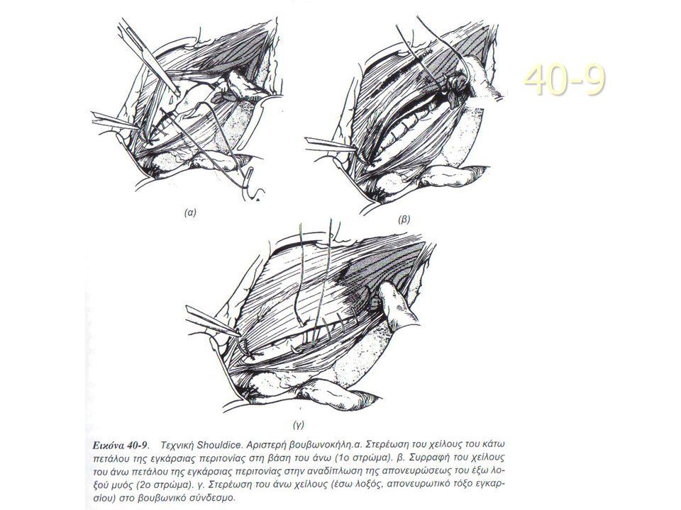 Τεχν. Lichtenstein 40-10
