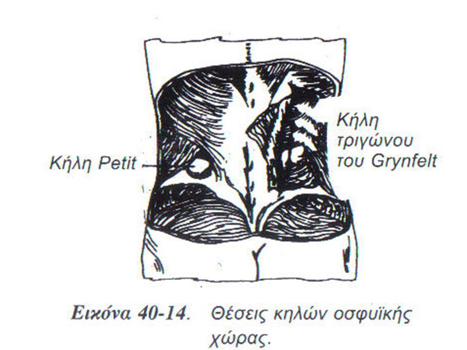 Σπάνιες κήλες Κήλη θυρεοειδούς τρήματος Κήλη θυρεοειδούς τρήματος Περινεϊκή κήλη Περινεϊκή κήλη Ισχιακή κήλη Ισχιακή κήλη