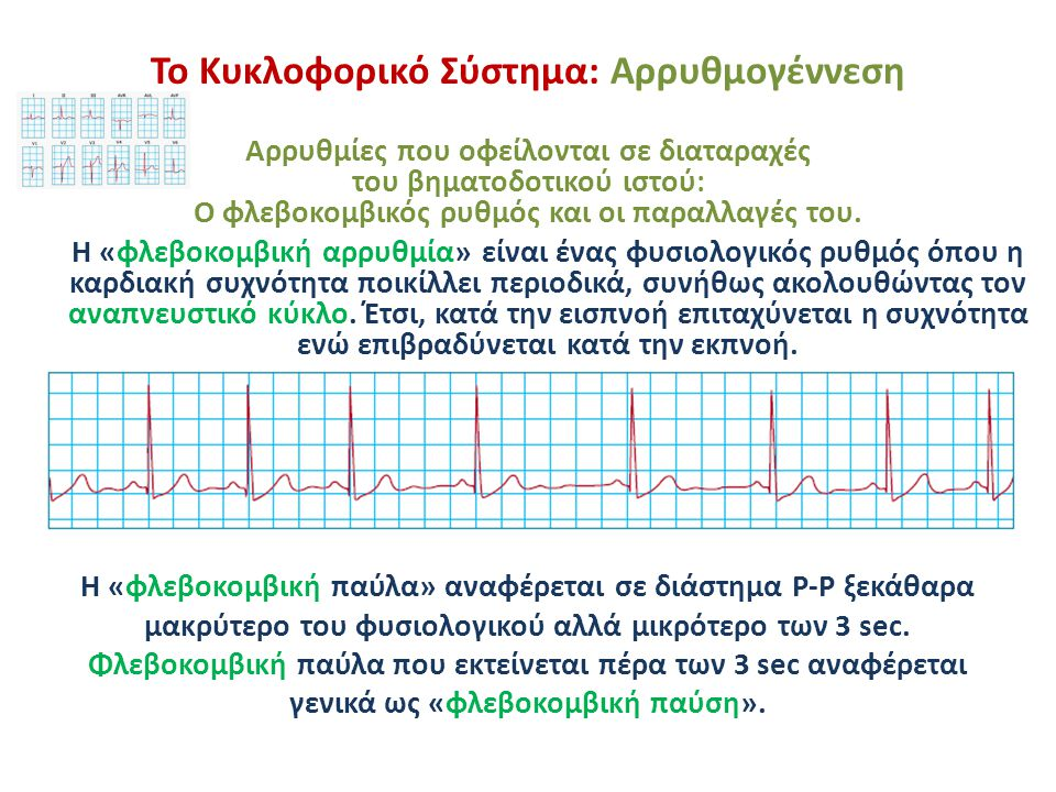 Το Κυκλοφορικό Σύστημα: Αρρυθμογέννεση Αρρυθμίες που οφείλονται σε διαταραχές του βηματοδοτικού ιστού: Έκτακτες συστολές και ρυθμοί διαφυγής Οι έκτακτες συστολές προέρχονται από (συνήθως λανθάνοντες) βηματοδότες που βρίσκονται έξω από το φλεβόκομβο και διεγείρονται είτε εξαιτίας καταστολής της λειτουργίας του φλεβόκομβου είτε λόγω αναστολής της αγωγής των φλεβοκομβικών ώσεων.