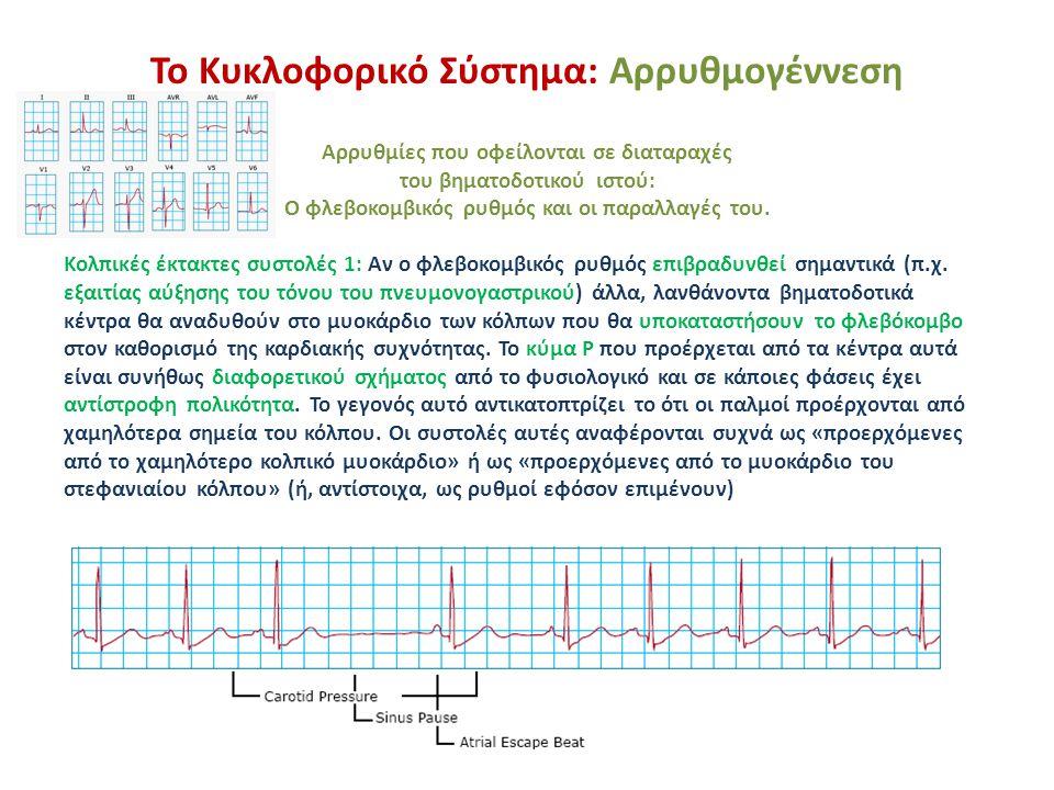 Το Κυκλοφορικό Σύστημα: Αρρυθμογέννεση Αρρυθμίες που οφείλονται σε διαταραχές του βηματοδοτικού ιστού: Ο φλεβοκομβικός ρυθμός και οι παραλλαγές του.