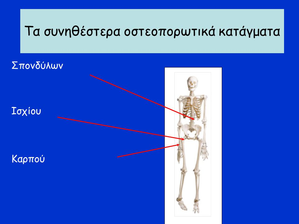 Οστεοπορωτικά κατάγματα