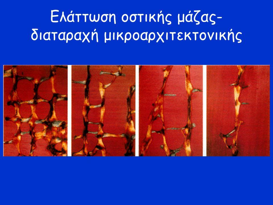 Διαταραχή μικροαρχιτεκτονικής (;) –  remodeling –Διασπάσεις δοκιδώδους οστού/ απώλεια οριζόντιων δοκίδων Eλαττωμένη οστική μάζα –  κορυφαία οστική μάζα Γενετικοί –πολυμορφησμοί γονιδίων: Vit D receptor, BMP-2 κ.ά.