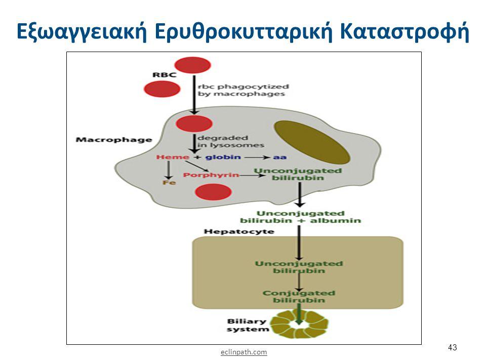 Εξωαγγειακή Ερυθροκυτταρική Καταστροφή 43 eclinpath.com