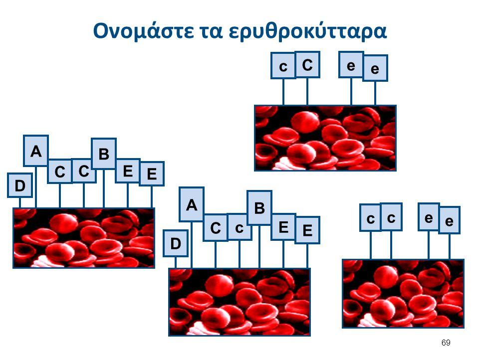 D C CE E A B D C cE E A B c ce e c Ce e Ονομάστε τα ερυθροκύτταρα 69