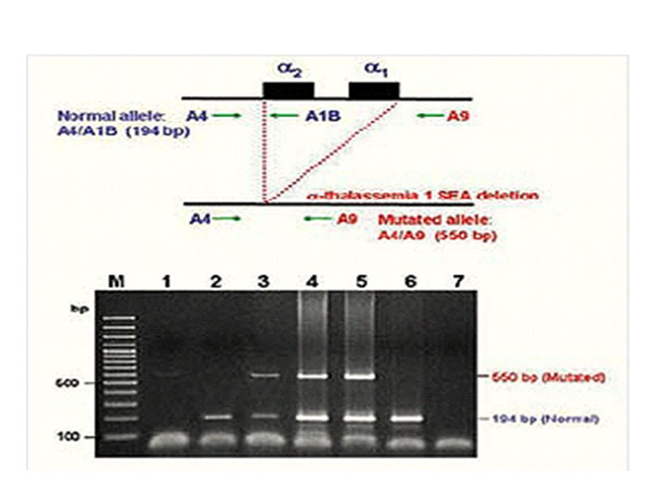 Diagram of gap-PCR for detection of α-thalassemia 1 SEA deletion and agarose-gel electrophoresis showing 3 different genotypes from representative blastomeres in the present of relevant controls