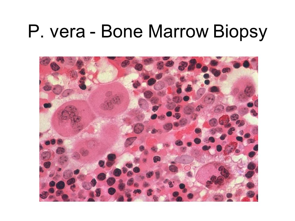 P. vera - Bone Marrow Biopsy