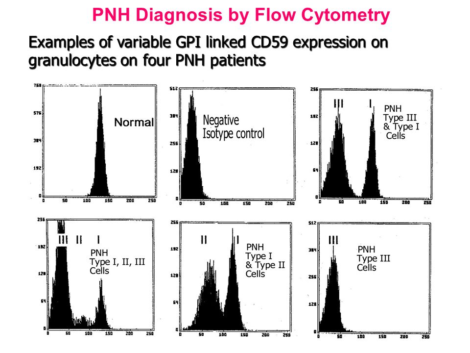 PNH Diagnosis by Flow Cytometry