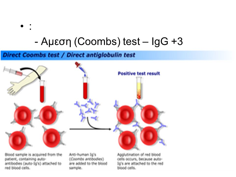 : - Αμεση (Coombs) test – IgG +3