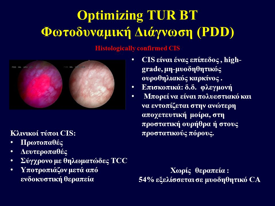 Optimizing TUR BT Φωτοδυναμική Διάγνωση (PDD)