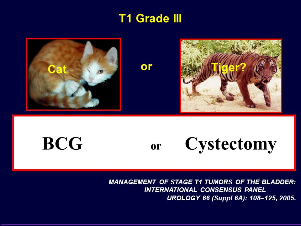 BCBCG or Cystectomy T1 Grade III or Tiger Cat (LOE 3-4)
