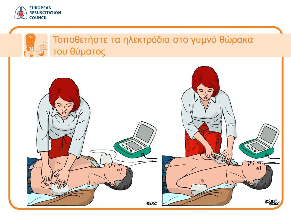 Τοποθετήστε τα ηλεκτρόδια στο γυμνό θώρακα του θύματος