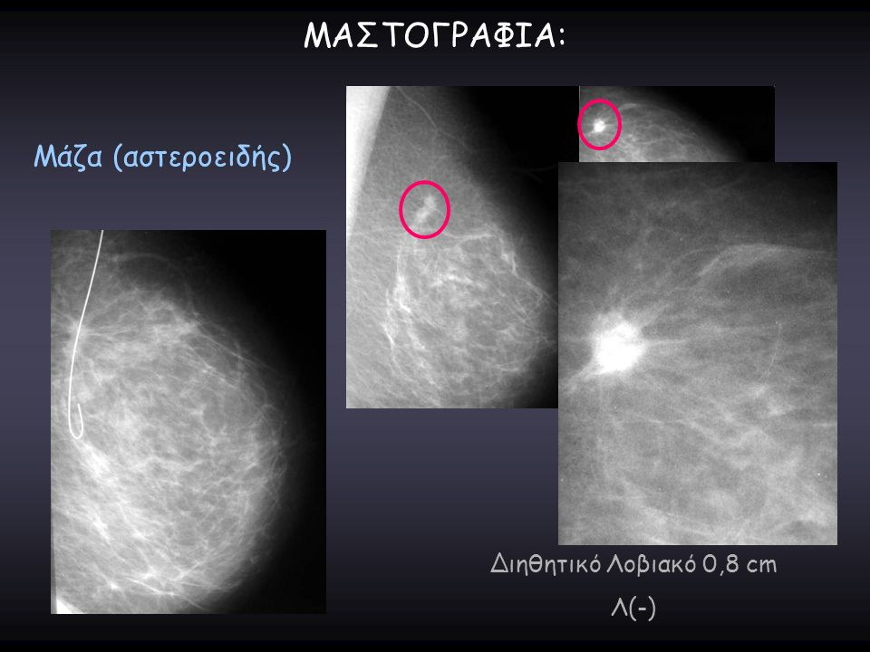 ΜΑΣΤΟΓΡΑΦΙΑ: Μάζα (αστεροειδής) Διηθητικό Λοβιακό 0,8 cm Λ(-)