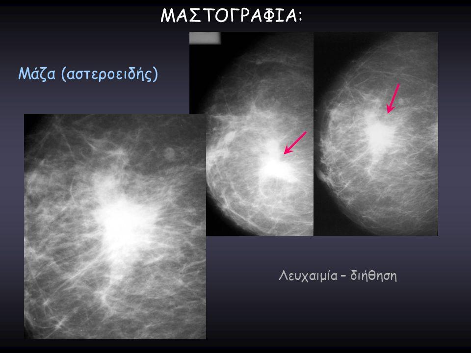 ΜΑΣΤΟΓΡΑΦΙΑ: Μάζα (αστεροειδής) Λευχαιμία – διήθηση