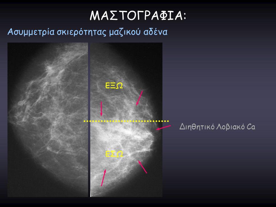 ΜΑΣΤΟΓΡΑΦΙΑ: Ασυμμετρία σκιερότητας μαζικού αδένα ΕΞΩ