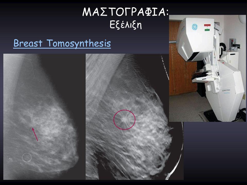 ΜΑΣΤΟΓΡΑΦΙΑ: Εξέλιξη Breast Tomosynthesis