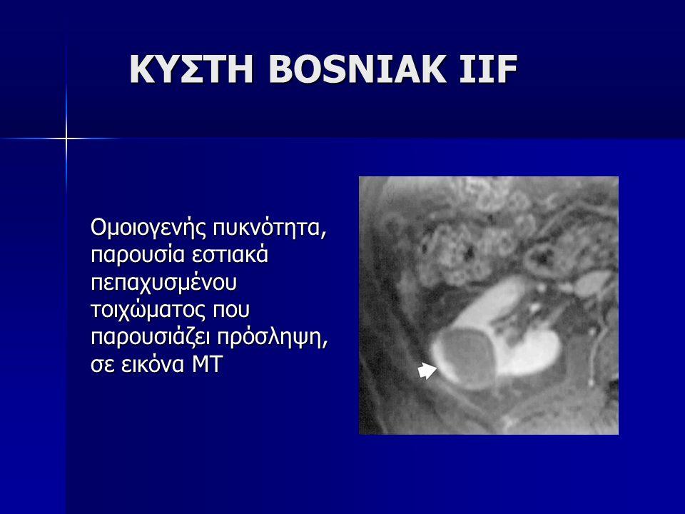 ΚΥΣΤΗ BOSNIAK IIF Ομοιογενής πυκνότητα,