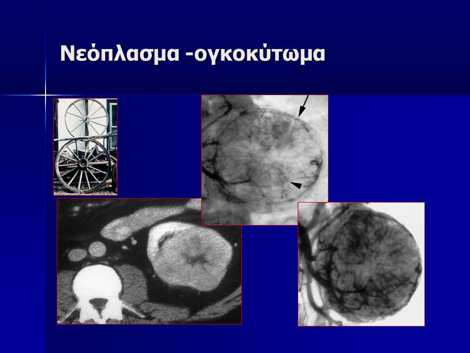 Νεόπλασμα -ογκοκύτωμα