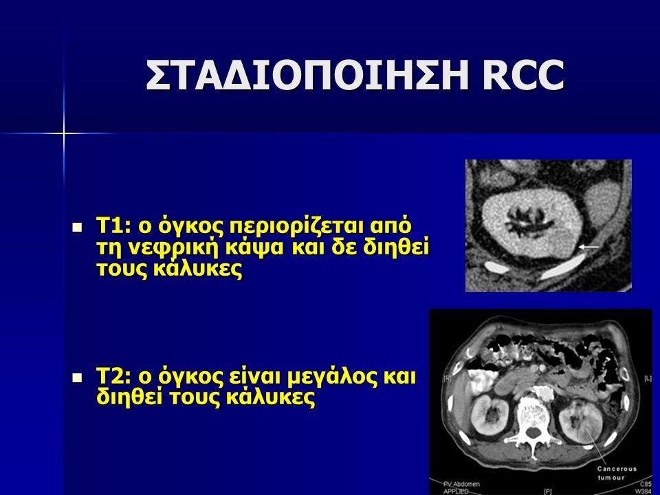 ΣΤΑΔΙΟΠΟΙΗΣΗ RCC Τ1: ο όγκος περιορίζεται από τη νεφρική κάψα και δε διηθεί τους κάλυκες.