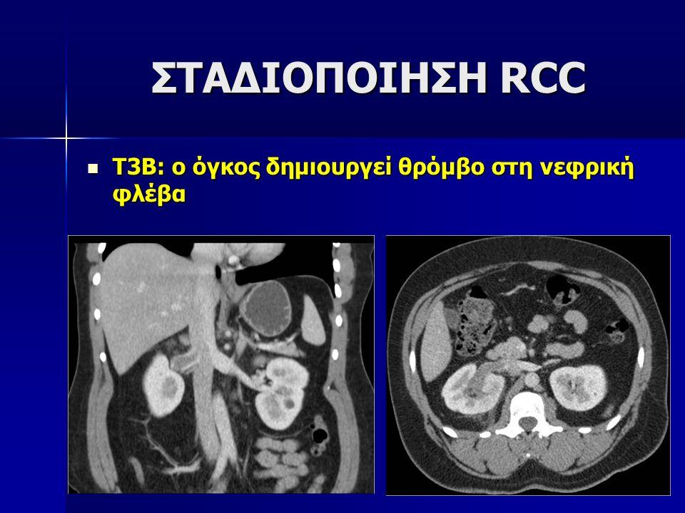 ΣΤΑΔΙΟΠΟΙΗΣΗ RCC Τ3Β: ο όγκος δημιουργεί θρόμβο στη νεφρική φλέβα
