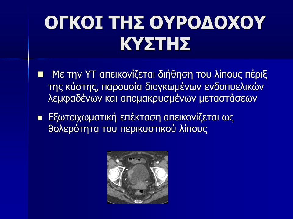 ΟΓΚΟΙ ΤΗΣ ΟΥΡΟΔΟΧΟΥ ΚΥΣΤΗΣ