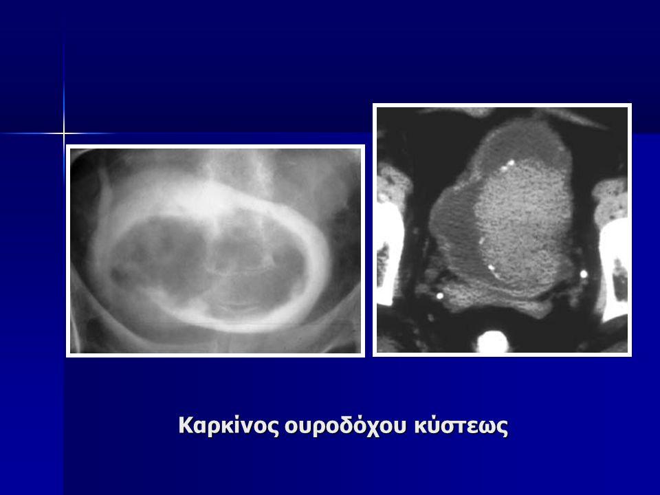 Καρκίνος ουροδόχου κύστεως