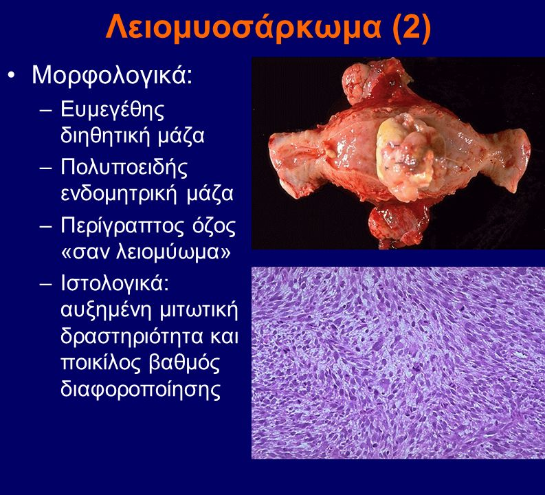 Λειομυοσάρκωμα (2) Μορφολογικά: Ευμεγέθης διηθητική μάζα