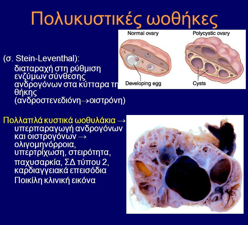 Πολυκυστικές ωοθήκες (σ. Stein-Leventhal):
