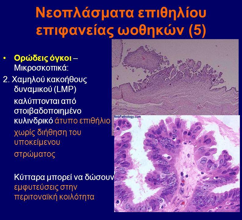 Νεοπλάσματα επιθηλίου επιφανείας ωοθηκών (5)