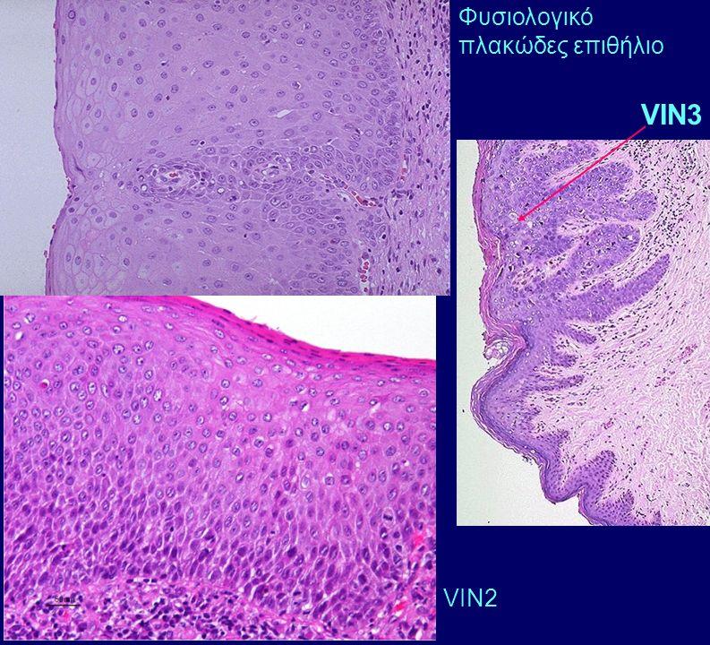 Φυσιολογικό πλακώδες επιθήλιο VIN3 VIN2