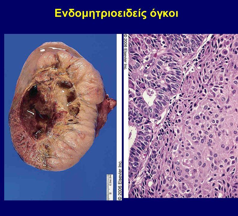 Ενδομητριοειδείς όγκοι