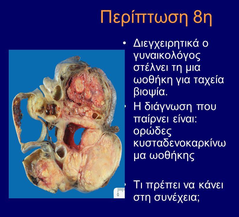 Περίπτωση 8η Διεγχειρητικά ο γυναικολόγος στέλνει τη μια ωοθήκη για ταχεία βιοψία. Η διάγνωση που παίρνει είναι: ορώδες κυσταδενοκαρκίνωμα ωοθήκης.