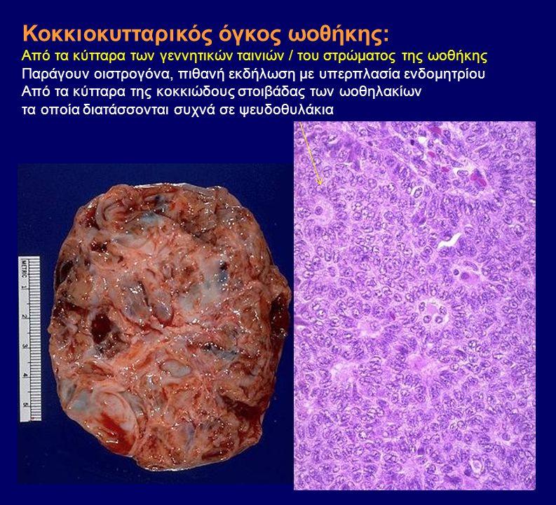 Κοκκιοκυτταρικός όγκος ωοθήκης: