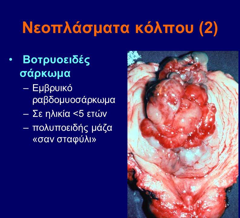 Νεοπλάσματα κόλπου (2) Βοτρυοειδές σάρκωμα Εμβρυικό ραβδομυοσάρκωμα