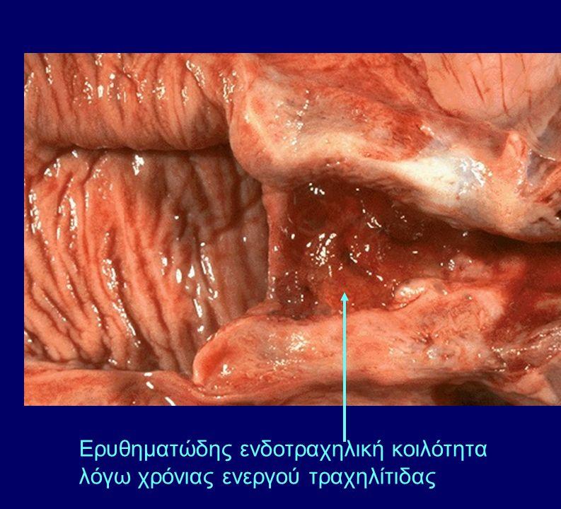 Ερυθηματώδης ενδοτραχηλική κοιλότητα λόγω χρόνιας ενεργού τραχηλίτιδας