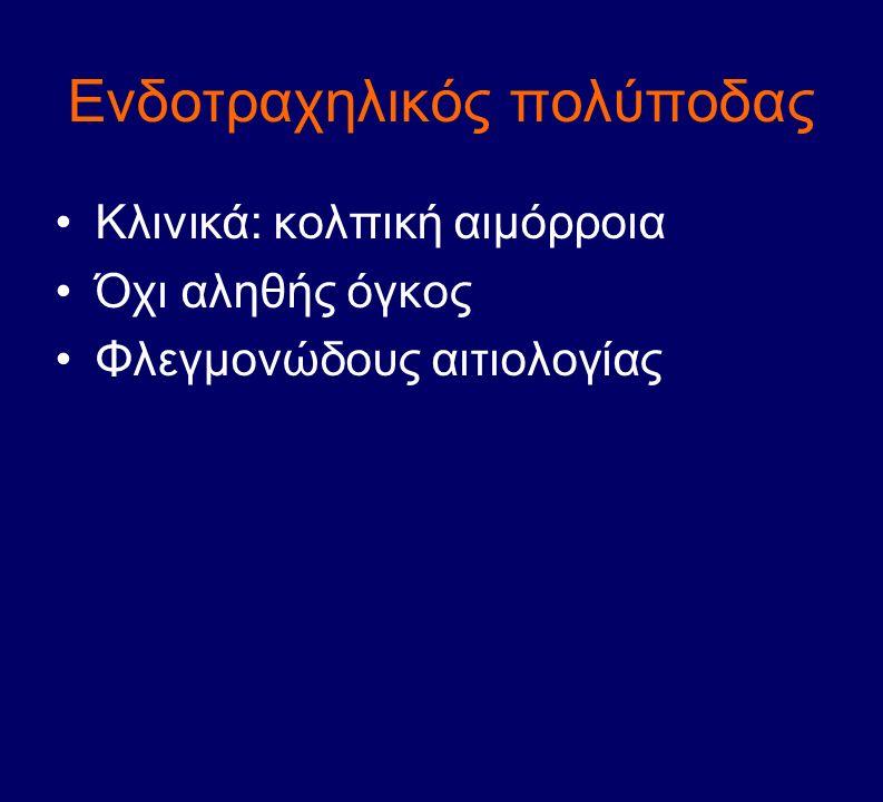 Ενδοτραχηλικός πολύποδας