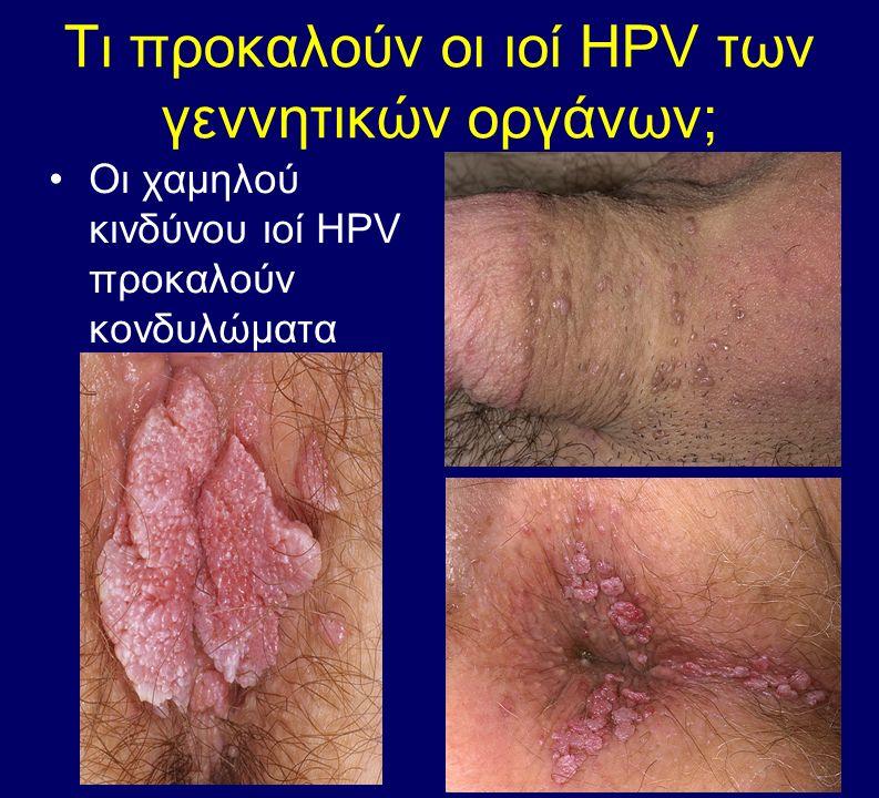 Τι προκαλούν οι ιοί HPV των γεννητικών οργάνων;
