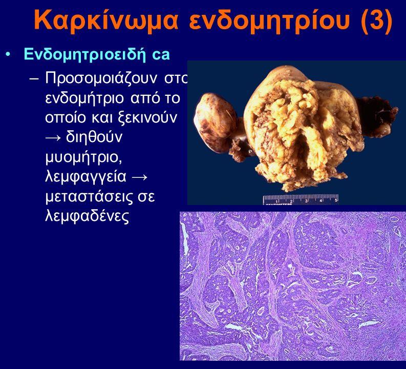 Καρκίνωμα ενδομητρίου (3)