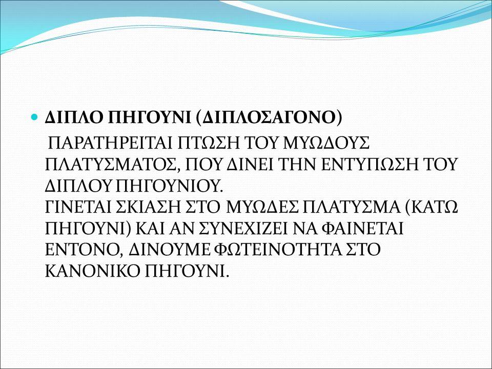 ΔΙΠΛΟ ΠΗΓΟΥΝΙ (ΔΙΠΛΟΣΑΓΟΝΟ)