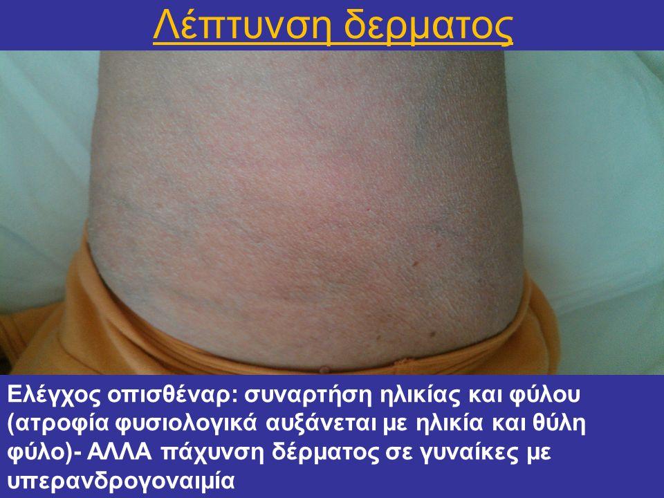 Λέπτυνση δερματος