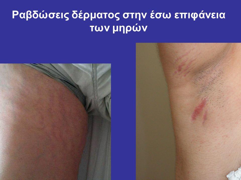 Ραβδώσεις δέρματος στην έσω επιφάνεια των μηρών
