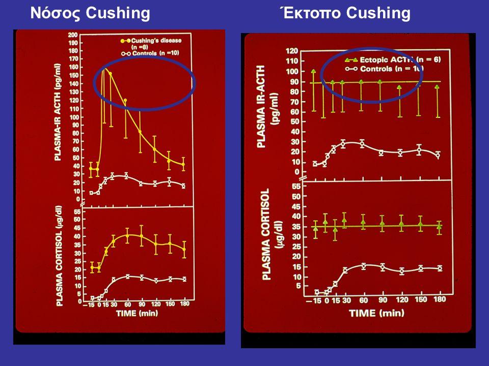 Νόσος Cushing Έκτοπο Cushing