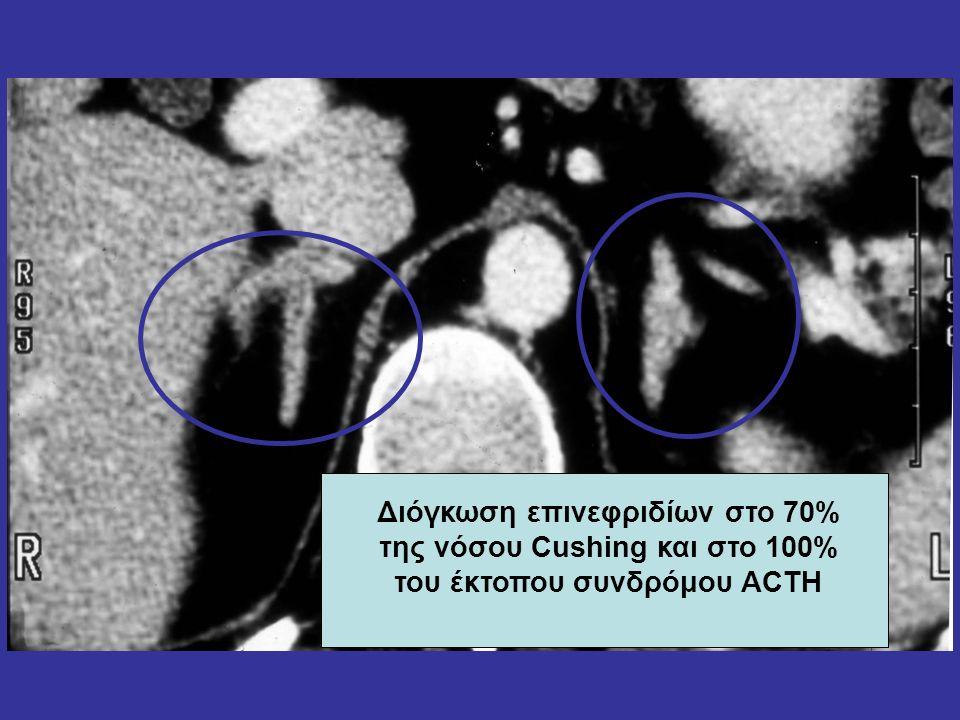 Διόγκωση επινεφριδίων στο 70% της νόσου Cushing και στο 100% του έκτοπου συνδρόμου ACTH