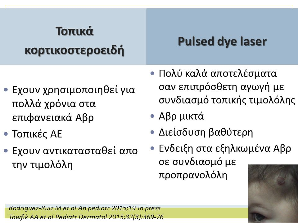 Toπικά κορτικοστεροειδή Pulsed dye laser