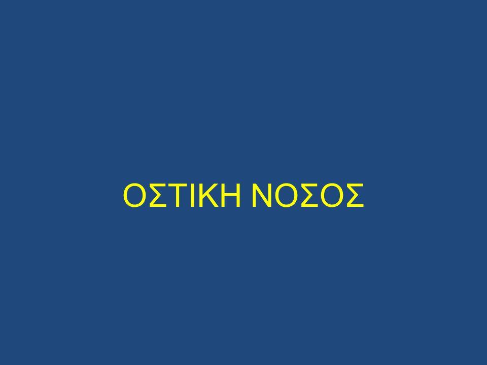 ΟΣΤΙΚΗ ΝΟΣΟΣ