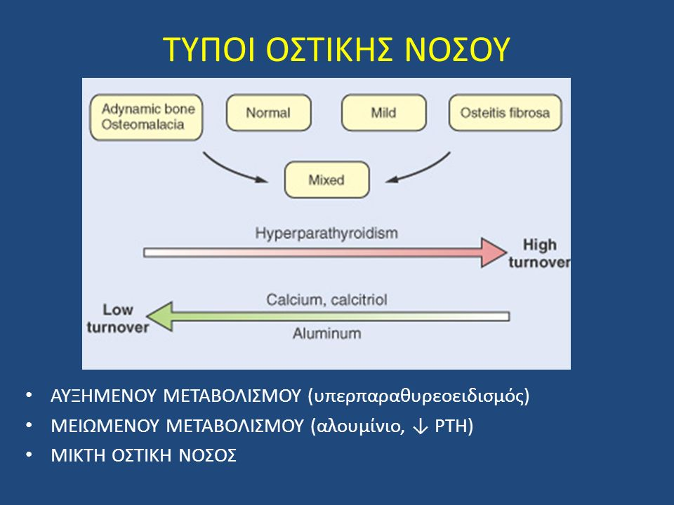 ΤΥΠΟΙ ΟΣΤΙΚΗΣ ΝΟΣΟΥ ΑΥΞΗΜΕΝΟΥ ΜΕΤΑΒΟΛΙΣΜΟΥ (υπερπαραθυρεοειδισμός)