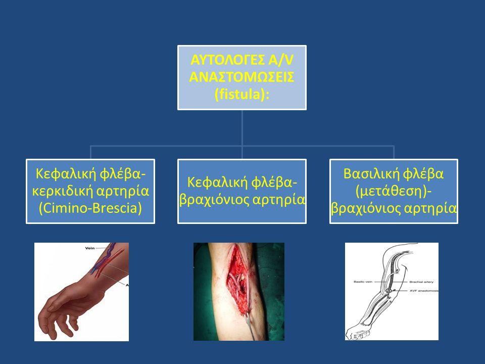 ΑΥΤΟΛΟΓΕΣ A/V ΑΝΑΣΤΟΜΩΣΕΙΣ (fistula):