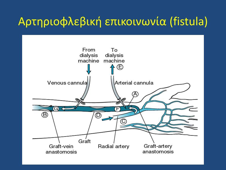 Αρτηριοφλεβική επικοινωνία (fistula)