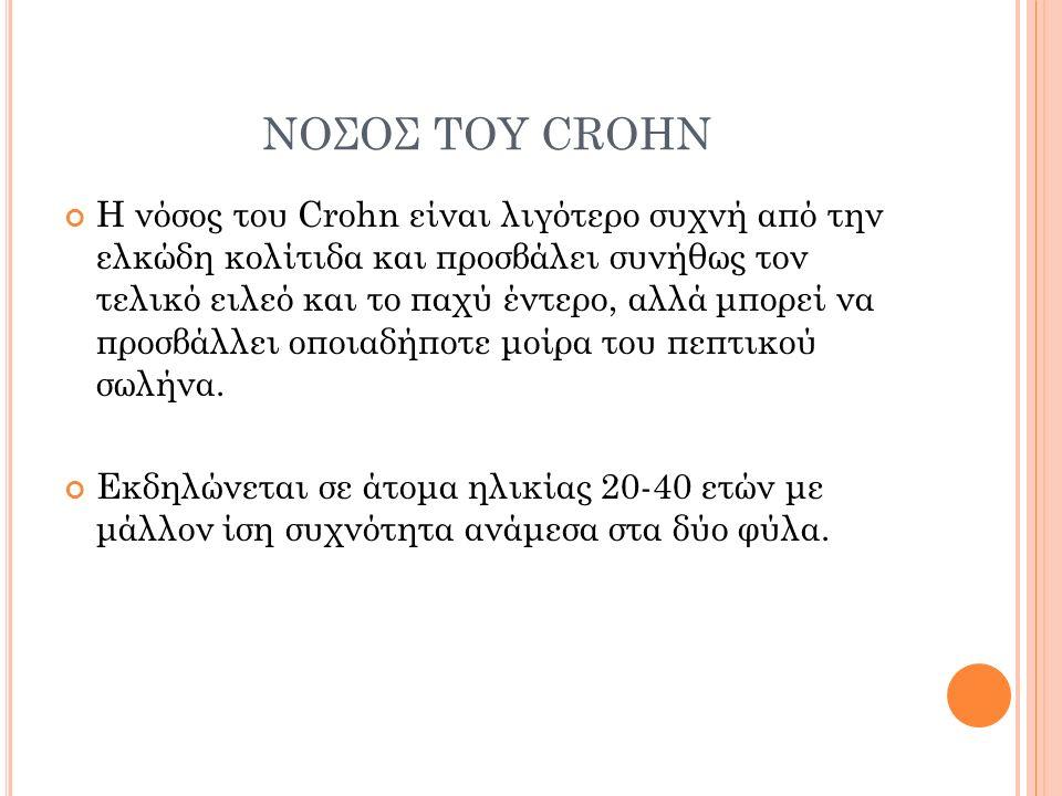 ΝΟΣΟΣ ΤΟΥ CROHN