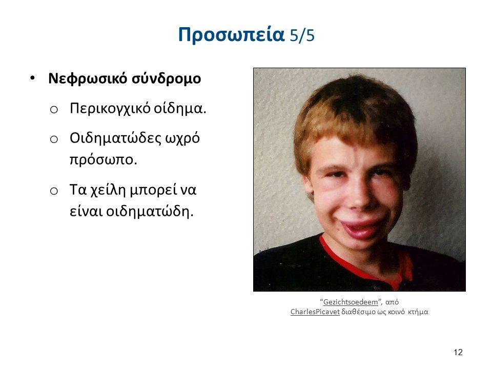 Αναδημιουργία από: μάτι , από uroburos διαθέσιμο ως κοινό κτήμα