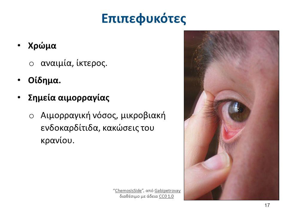 Κόρες 1/2 Μυδρίαση Ανοξαιμία στο ανώτερο εγκεφαλικό στέλεχος,